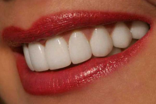 КАК отбелить зубы с помощью пищевой соды Полезные советы KakProsto.ru как просто сделать всё